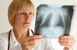 Улан-удэнские врачи вовремя не выявили туберкулез у ребенка