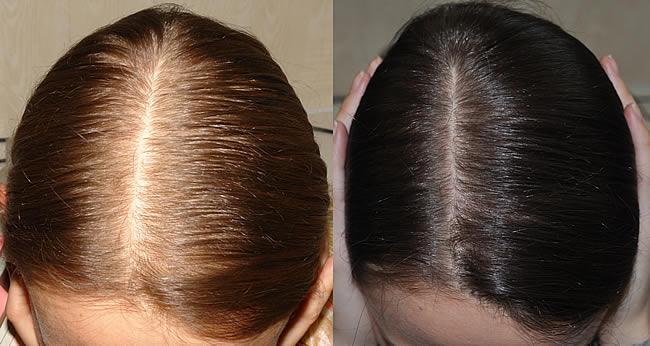 Эти три ингредиента остановят выпадение волос и восстановят их силу и блеск за один раз!