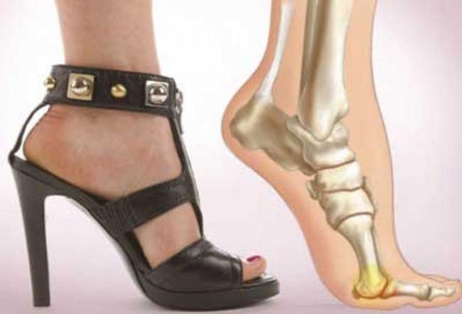 С этой уловкой вы навсегда забудете о том, что такое боль после ношения каблуков