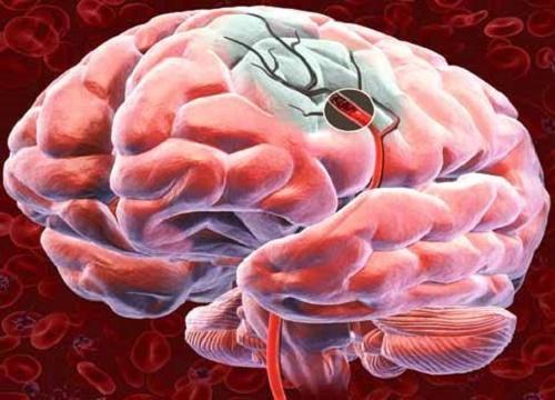 Эти пять советов помогут улучшить кровоснабжение головного мозга